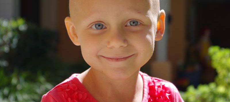 Smiling little girl, bald head from chemo